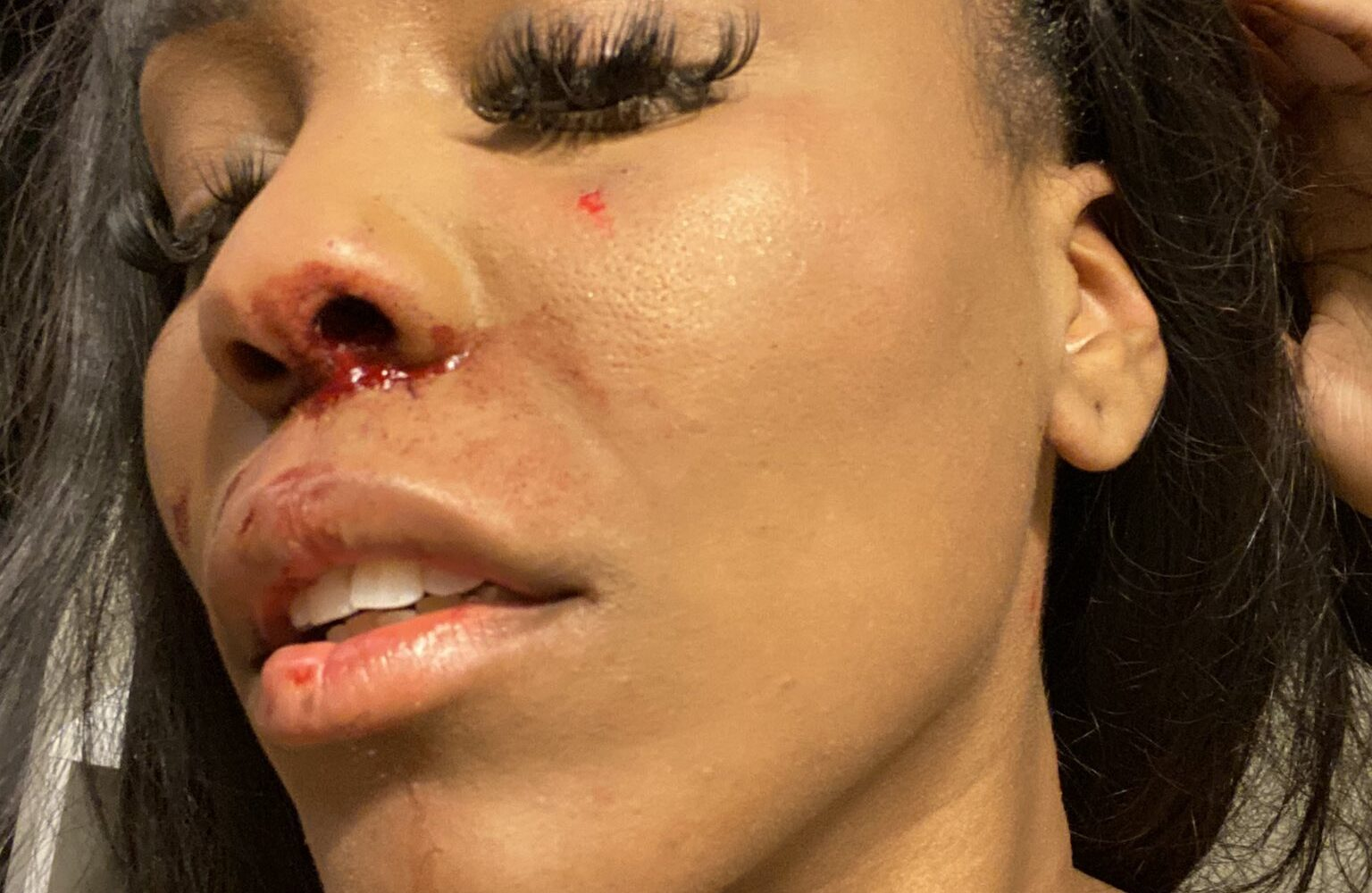 """""""Same sex relationship violence is real""""- lady cries out after being beaten by girlfriend"""