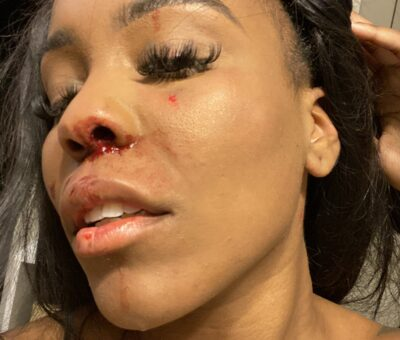 """Same sex relationship violence is real""- lady cries out after being beaten by girlfriend"